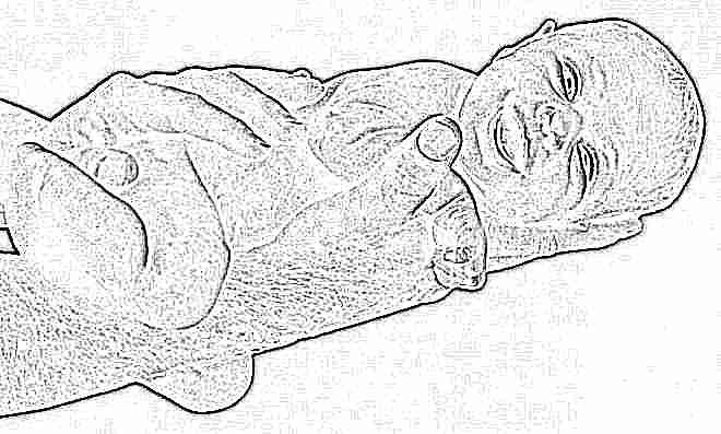 Угол альфа при узи тазобедренных суставов норма у детей