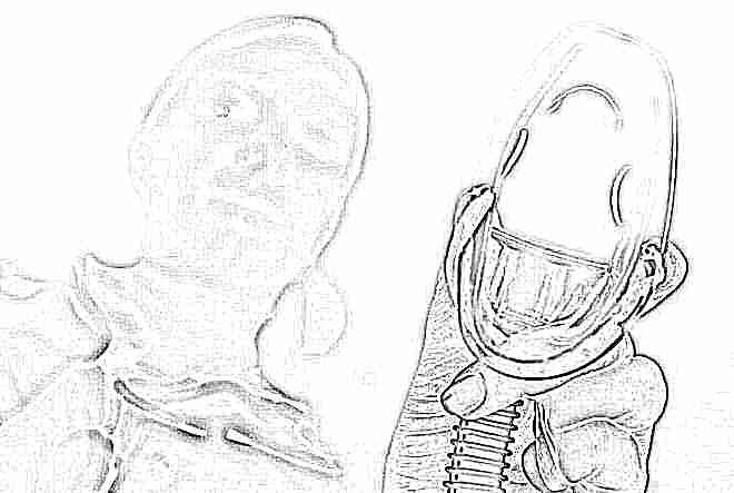 Прерывание беременности кесаревым сечением