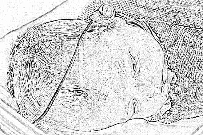 Скрининг новорожденных в роддоме: что это и на какие болезни